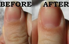 Cuticle Care - easy and effective! No need to cut dead cuticle skin off.