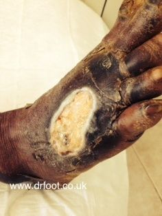 Diabetic ulcer  http://www.drfoot.co.uk