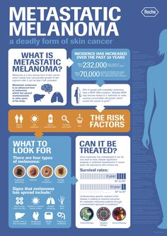 Metastatic Melanoma - a deadly form of skin cancer...not there yet but want to watch for the signs!