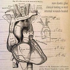 senryu by M. Nakazato LaFreniere, haiku, senryu, #haiku, #senryu, #poetry, #poem, image by Henry Vandyke Carter 1859, http://cactushaiku.com/daily-haiku-senryu-elastic/