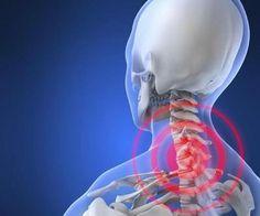 rigidez frecuente de cuello rígido de incontinencia