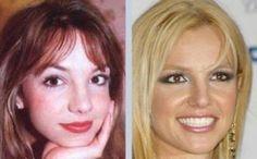 Britney Spears. Nose job before & after. Visit us at http://www.drgregpark.com/