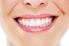 Teeth whitening procedures at the dentist can cost a small fortune, so why no check out this great three-minute home method instead.