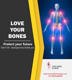 Like bones to the human body, the axle to the wheel, the wing to the bird, and the air to the wing.  Get best orthopedic treatment at our clinic. #jointsurgery #orthopedicsurgery For more details visit us http://www.kneeandjointsurgery.com/ or contact 9923406258