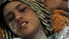 Good news! Sahar Gul, the Afghan teen who was tortured by her in-laws, is on road to recovery & her in-laws are in jail.