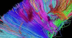 Can Brain Scans Really Tell Us What Makes Art Beautiful?   Innovations