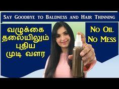 முடி உதிர்வை நிறுத்தி அடர்த்தியாக வளர செய்யும் / Hair Growth Spray / Chennai Girl In London - YouTube Hair Growth Tips, Hair Care Tips, Natural Liver Cleanse, Beauty Hacks, Beauty Tips, Hair Health, Hair Oil, Diy Hairstyles, Natural Hair Styles