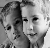 children with black eyes | Black Eyed Kids
