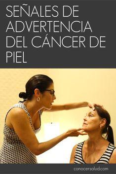 Estas son las señales de advertencia del cáncer de piel #salud