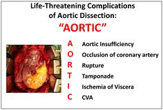 Nursing Mnemonics: Complications of Aortic Dissection Nursing School Tips, Nursing Notes, Medical School, Pa School, Nursing Career, Aortic Aneurysm, Cardiac Nursing, Surgical Nursing