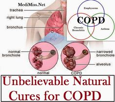 Chronic Obstructive Pulmonary Disease, or COPD is a complicated health condition that needs treatment. There are some natural cure for COPD that works effectively in managing the condition.