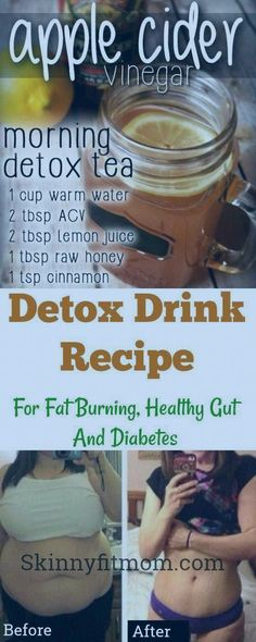 Apple cider vinegar detox drink is a drink effective for fat burning, diabetes, and a healthy gut. Here's the recipe to lose weight and stay healthy! Body Detox, Detox Tea, Start Losing Weight, Lose Weight, Reduce Weight, Lose Fat, Water Weight, Apple Cider Vinegar Morning, Apple Vinegar