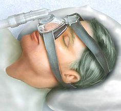 1000 Images About Sleep Apnea On Pinterest Sleep Apnea