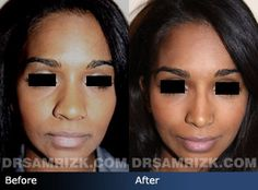 Ethnic Rhinoplasty is very different than a simple nose job. Rizk has performed rhinoplasty on many different ethnic groups: Hispanic, African American, Mediterranean,etc. Ethnic Rhinoplasty, Rhinoplasty Surgery, Nose Surgery, Nostril Reduction, Nasal Septum, Rhinoplasty Before And After, Facial, Neck Lift, Thick Skin
