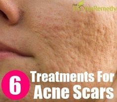 Scar Removing Natural Treatments For Acne Scars :: Click the link to read more.... http://www.rapidhomeremedies.com/7-top-remedies-remove-acne-scars.html
