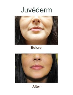 Best wrinkle fillers procedures and otc creams beauty juvederm a dermal filler is used to fill the laugh lines around the mouth it is also often used to restore lost volume and help regain a more youthful solutioingenieria Images