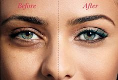 Dark circles and puffiness are common skin problems often caused by allergies and inflammation. The tannin's in green tea can quickly reduce under eye swelling. Just place two tea bags in cold water, remove and then let them sit on your eyes for about 10 minutes. http://www.ratanayurvedic.com/