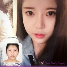 plastic surgery korea asia plastic surgery plastic surgery in korea plastic surgery facial bone contouring breast surgery eye surgery boobs job nose surgery rhinoplasty nosejob