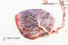15 Fascinating Photos That Celebrate the Placenta in All Its Gory Glory | The Stir