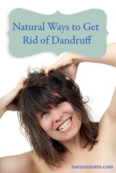 how to avoid dandruff naturally