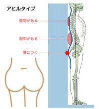 「むくみ、膝上、足首痩せ」のタイプの足痩せ