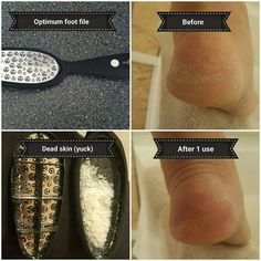 GelMoment's Optimum Foot File is AMAZING! See the results for yourself with just one use 👣