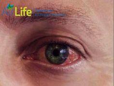 """Qué síntomas causa la polución del aire? #airlife #aire #previsión #virus #hongos #bacterias #esporas #purificación  purificación de aire Airlife te informa que la polución del aire puede irritar los ojos, la garganta y los pulmones. El ardor en los ojos, la tos y la presión en el pecho son comunes con la exposición a niveles altos de polución en el aire. <a href=""""http://airlifeservice.com/"""