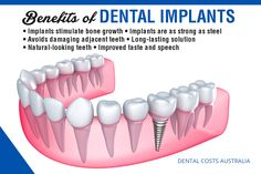 Dental Implants Clinic in Abu Dhabi - Looking for the best dental implants in Abu Dhabi? Here we provide the best dental implants. Smilerite is one of the best dental clinics in abu dhabi UAE Best Dental Implants, Single Tooth Implant, Affordable Dental, Tooth Replacement, Root Canal Treatment, Colon, Dental Center, Dental Group, Dental Health