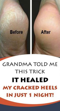 Grandma Told Me This Trick. It Healed My Cracked Heels in Just 1 Night! Body Coach, Oil Candles, Do It Anyway, Foot Cream, Water Treatment, Regular Exercise, 1st Night, Dead Skin, Want To Lose Weight