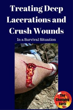 Bones discusses treating Deep Lacerations and Crush wounds on The Changing Earth Podcast. Hear chapter 33 of the apocalyptic novel Without Land as well! Emergency Preparation, Survival Prepping, Emergency Preparedness, Survival Gear, Survival Skills, Emergency Supplies, Apocalyptic Novels, Zombie Apocalypse Survival, Emergency Medicine