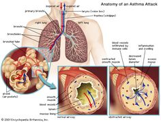 GREAT NATURAL WAYS OF HEALING ASTHMA- my experiences