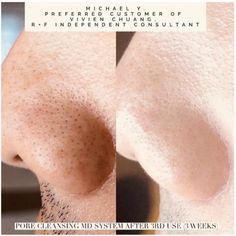Your pores have met their match with Rodan + Fields Pore Cleansing MD System. This System comes with the cleansing tool, solution and 2 cleansing tips. One for cleaning pores.one for removing blackheads. Try it for 60 days.