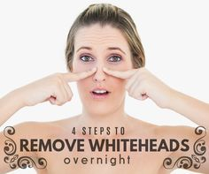 4 Steps to Remove Whiteheads Overnight