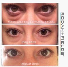Say goodbye to tired eyes! Rodan+Fields Multi-Function Eye Cream is dermatologist created and clinically tested. The proof is in the pictures! #skincare #rodanandfields #beauty #eyecreamsrodanandfields