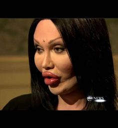 Burns, former frontman of Dead or Alive. I love me some Pete Burns!Pete Burns, former frontman of Dead or Alive. I love me some Pete Burns! Botched Plastic Surgery, Bad Plastic Surgeries, Plastic Surgery Gone Wrong, Celebrity Plastic Surgery, Plastic Surgery Pictures, Pete Burns, Operation, Chemical Peel, Body Modifications