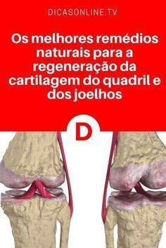 Cartilagem joelho | Os melhores remédios naturais para a regeneração da cartilagem do quadril e dos joelhos | Esta é uma dica especial para quem como você sofre com artrite, dores nos joelhos, nas costas e em todas as articulações do corpo. Leia e aprenda ↓ ↓ ↓