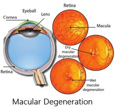 Nurse Teaching, Eye Anatomy, Eye Facts, Nursing Assessment, Family Nurse Practitioner, Healthy Eyes, Eyes Problems, Nursing Notes, Medical Information