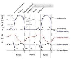 A Wiggers diagram is a standard diagram used in cardiac physiology named after Dr. Wiggers. The X-Axis is used to plot time, while Y-axis contains all of the following on a single grid. Blood Pressure Aortic Pressure Ventrical Pressure Atrial Pressure Ventricular Pressure ECG Atrial Flow (optional) Heart Sound (optional) This info is taken from our Friend @anesthesiaall #heart #physiology #ecg #aorticpressure #bloodpressure #cardiology #graph #anatomy #heartsound #pathology #usmle #uni...