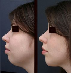 The image presents microgenia (small chin) before and after liposuction. Amazing change!