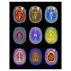 Nine MRI scans of woman's brain (Digital Enhanceme Poster