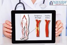 Peripheral artery disease (PAD) is blockage in the arteries of the legs.  If the blockage reaches dangerous levels, it can cause chronic leg pain and leg ulcers that do not heal.  If PAD continues to advance, and is not treated, leg ulcers can progress to gangrene, leading to leg amputation.  Learn more at: https://www.veinandvascularofspringhill.com/service/pad-treatment/  #SpringHillPeripheralVascularDiseaseCenter #PeripheralArteryDiseaseTreatmentSpringHill #SpringHillLimbSalvage