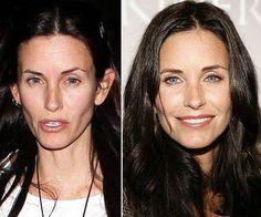 Before and after photos reveal that Courtney Cox has gotten extensive plastic surgery. A facelift and Botox injections are the two things that this former Friends star has gotten. Bad Plastic Surgeries, Plastic Surgery Photos, Celebrity Plastic Surgery, Courtney Cox Plastic Surgery, Plastic Surgery Gone Wrong, Botox Before And After, Celebrities Before And After, Cheek Fillers, Dermal Fillers