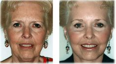What would you do To Look 15 Years Younger? A Famous Celebrity Doctor's New Wrinkle Remover Does Exactly That! - Botox Doctors Are Outraged By The Results! Cara Fresca, Skin Care Cream, Eye Cream, Skin Cream, Facial Cream, Anti Aging Moisturizer, Sagging Skin, Anti Aging Tips, Tips Belleza