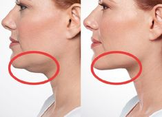 Exercises to Get Rid of a Double Chin   Fitness Tati