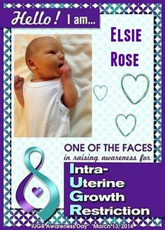 Elsie Rose was diagnosed as IUGR when I was 31 weeks pregnant, having been  suspected IUGR since 29 weeks. We'd had growth scans booked since 12 weeks, due to having had two previous SGA (Small for...