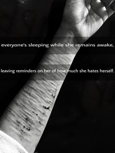 If you look closely, you can see the scars on my wrist from self harm