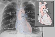 normal lung anatomy anatomy images