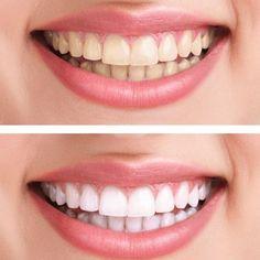 """Dieses Hausmittel macht eure Zähne weißer - """"Weißere Zähne ohne teure Beauty-Produkte: Diese Zahn-Verschönerung könnt ihr ganz leicht selbst herstellen!"""""""