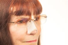 NoseComfort Eyeglass Support for Rhinoplasty, Septoplasty, and Broken Nose recovery.