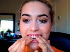 l'unica alternativa le coperture per i denti che hanno cambiato il mondo! #italia Snap On Smile, Get Whiter Teeth, Perfect Smile, White Teeth, Health, Google, Italy, Health Care, Salud